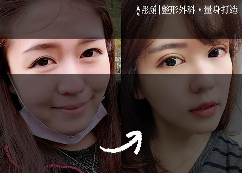 彷彿天生!後悔沒早做「訂書針雙眼皮」打造夢寐以求的明亮電眼~整形外科 劉宏貞醫師,大小眼,眼摺不對稱