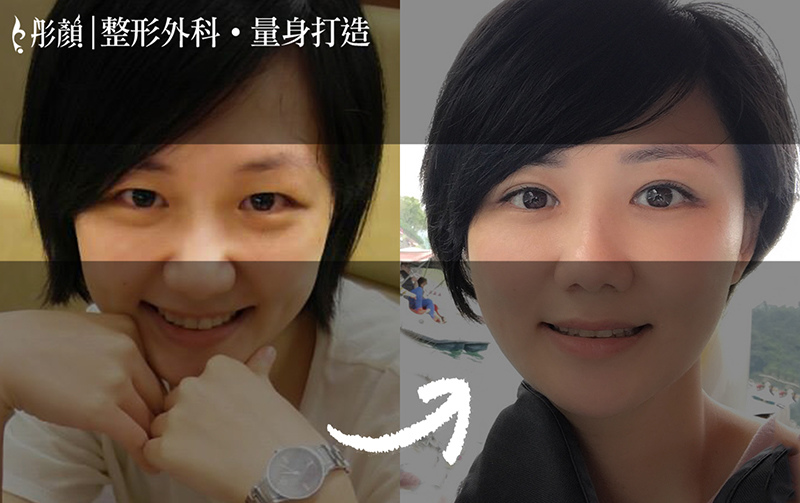 眼神銳利難親近?【眼神放大術】打造靈動會說話的眼睛-整形外科 劉宏貞醫師,雙眼皮