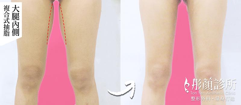 你有「大腿縫」了嗎? 迎接夏天~擁有纖細顯瘦美腿不是夢!-洪維志醫師,大腿抽脂,複合式抽脂,藝術體雕