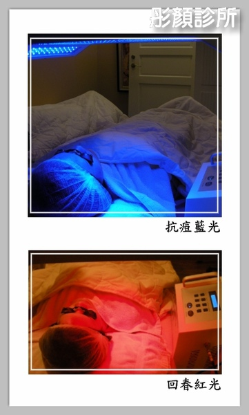 抗痘紅藍光.jpg