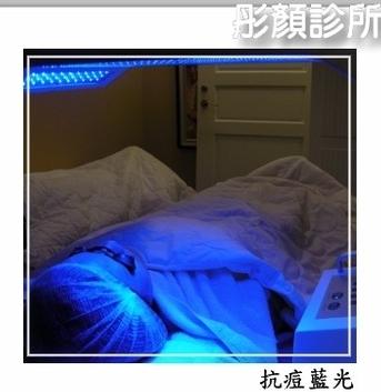 抗痘藍光.jpg