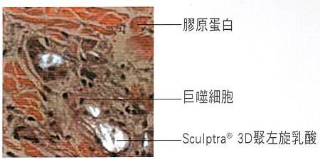3D聚左旋乳酸4.jpg