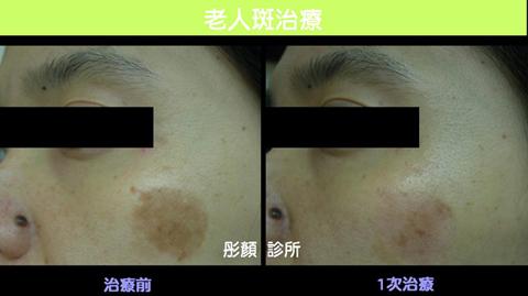 肌膚白案例2.jpg