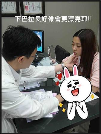 玻尿酸隆鼻04