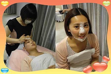 玻尿酸隆鼻06