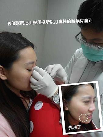 玻尿酸隆鼻07