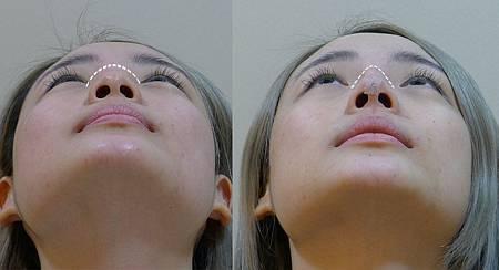 埋線隆鼻價格台中埋線隆鼻推薦埋線隆鼻台中朵特菈朵特菈劉力維醫師微整形.jpg