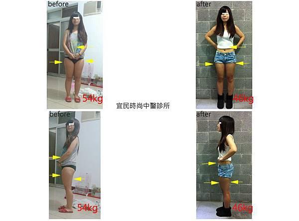 中醫減重∣台北中醫減重∣中醫減重台北∣中醫減肥∣中醫減肥門診