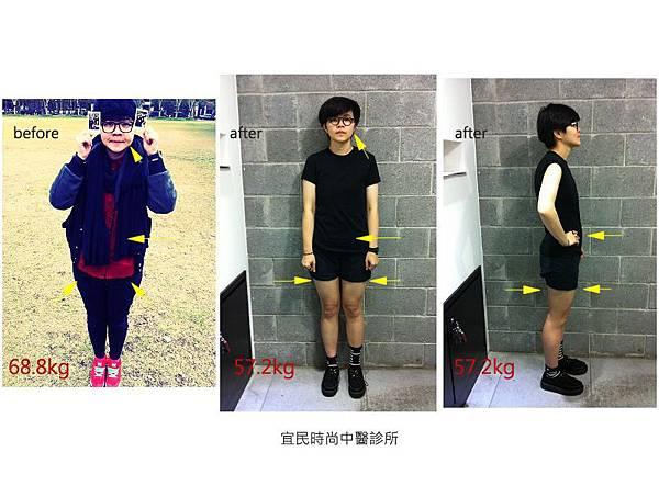 台北中醫減重
