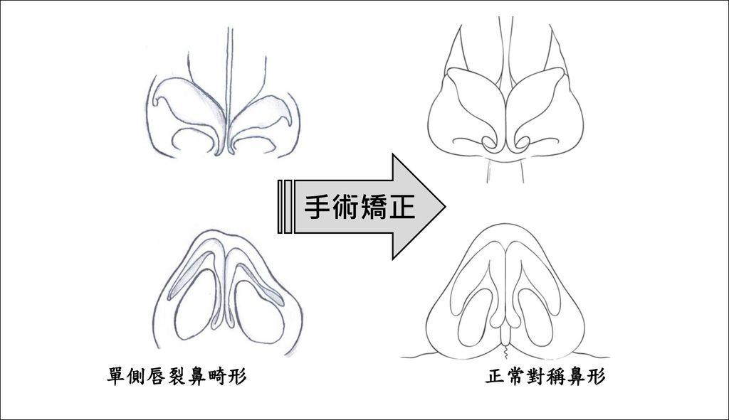 唇裂鼻畸形_矯正成_對稱鼻形 v2016-04-09