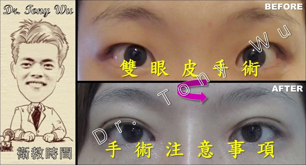[手術衛教] 雙眼皮手術 v2016-07-08