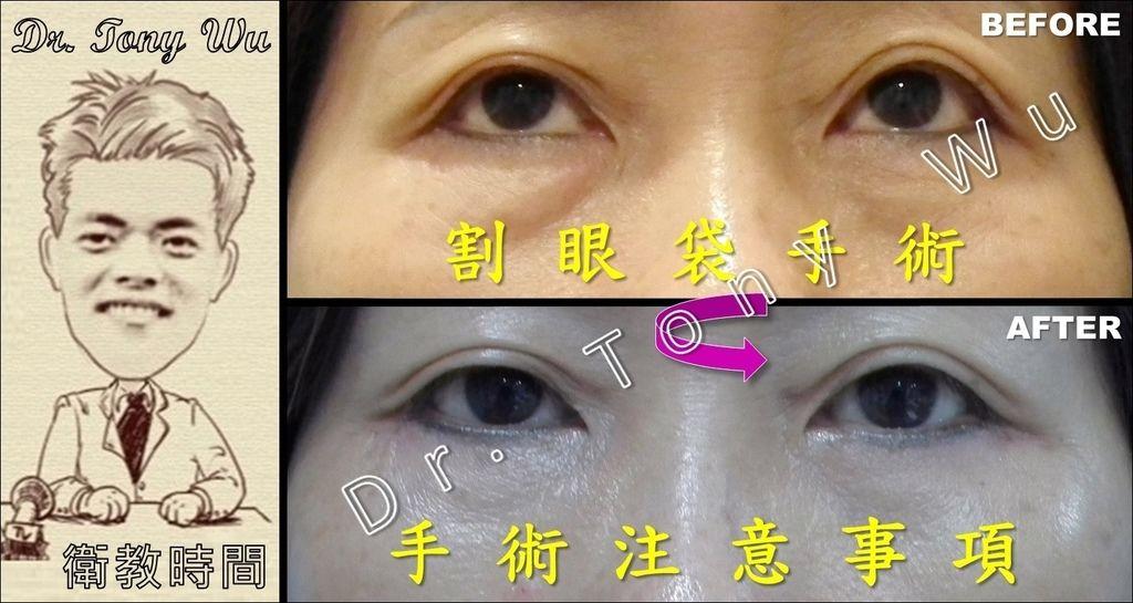[手術衛教] 割眼袋手術 v2016-07-08