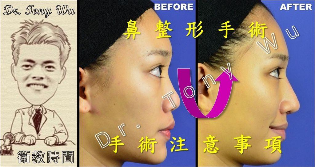 [手術衛教] 鼻整形手術 v2016-07-08