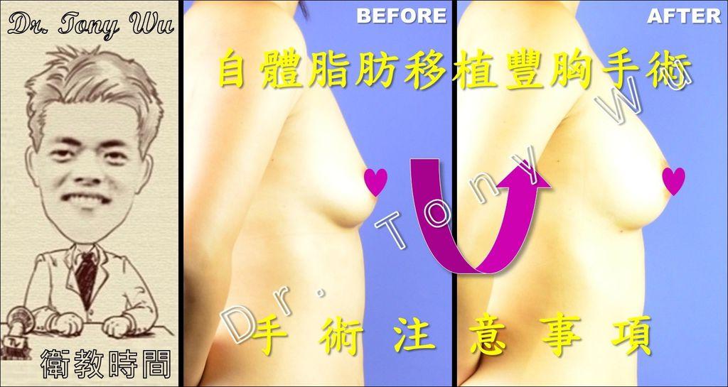 [手術衛教] 自體脂肪移植豐胸手術 v2016-07-08