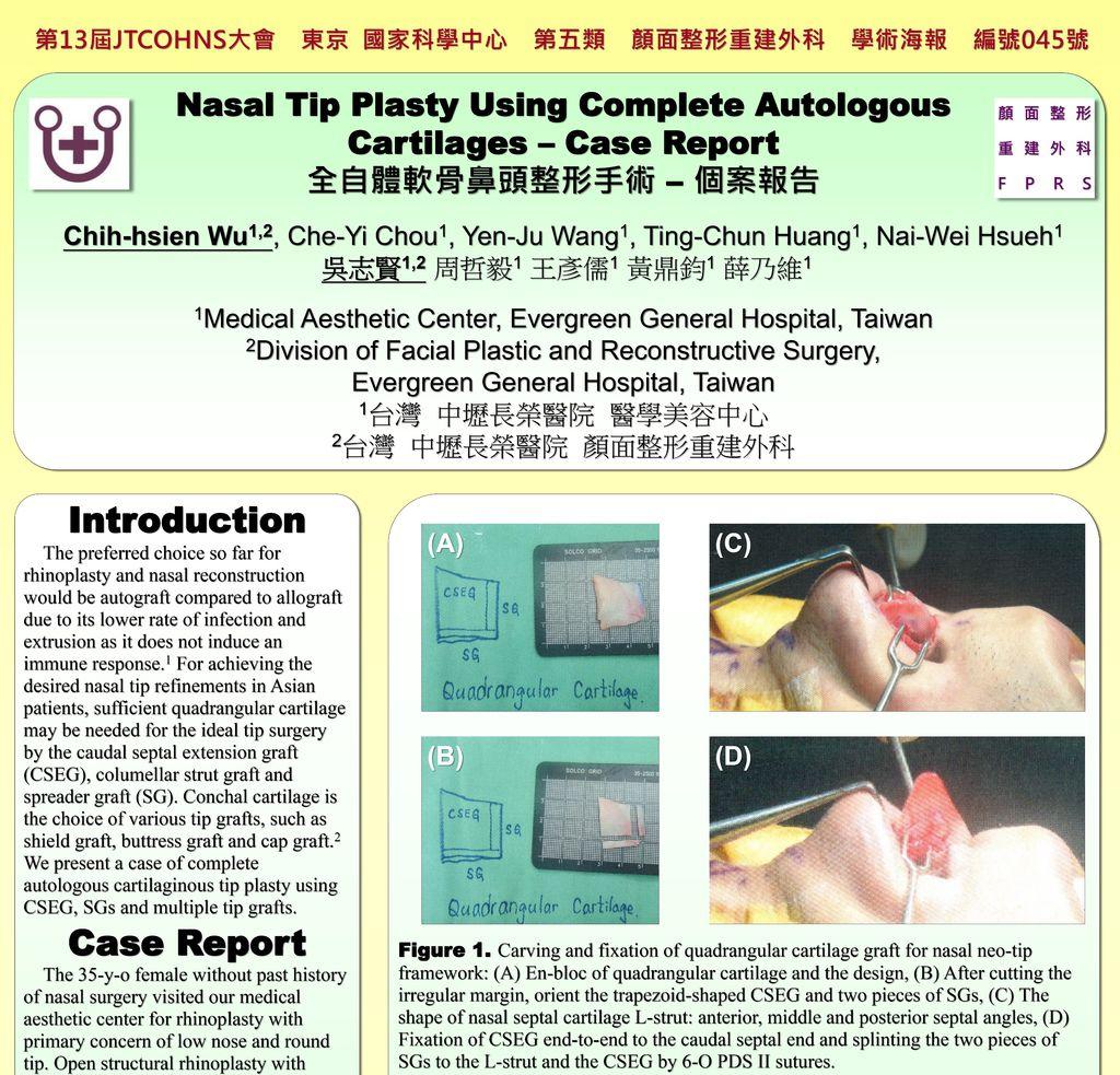 2015.12.03~04 全自體軟骨鼻頭整形手術-個案報告