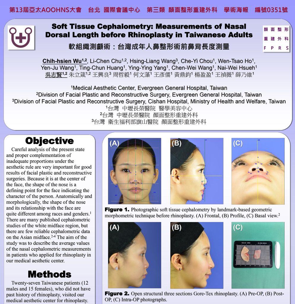 2015-03-19~22 軟組織測顱術:台灣成年人鼻整形術前鼻背長度測量