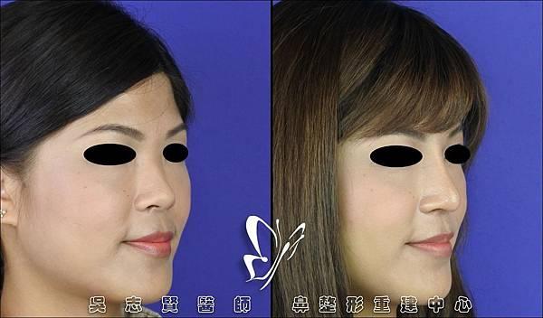 【案例】 三段式隆鼻 2016-10 (2)