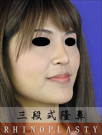 【案例】 三段式隆鼻 2016-10 (4)
