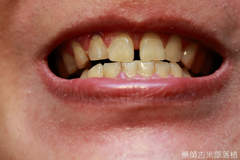 Oral-B_128.jpg