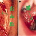 strep_throat3.jpg