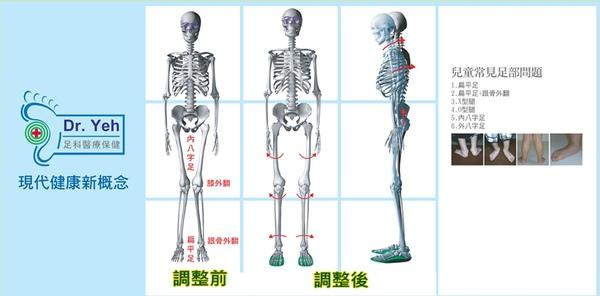 長短腳 人體脊椎圖.jpg