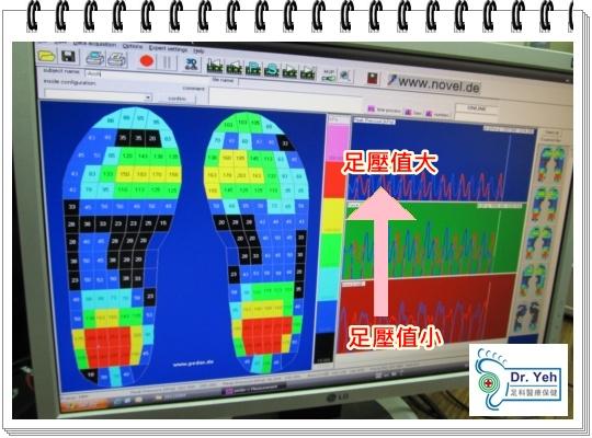 輔具研究所 測試鞋墊 009.jpg