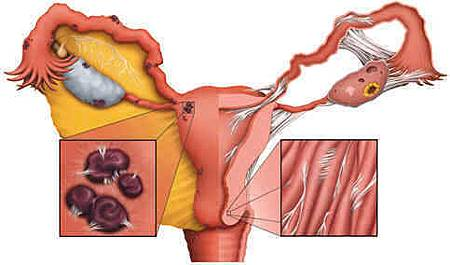 Adhered%20uterus.jpg