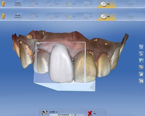 3.設計患者的全瓷冠-2.jpg