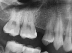 2缺牙.jpg