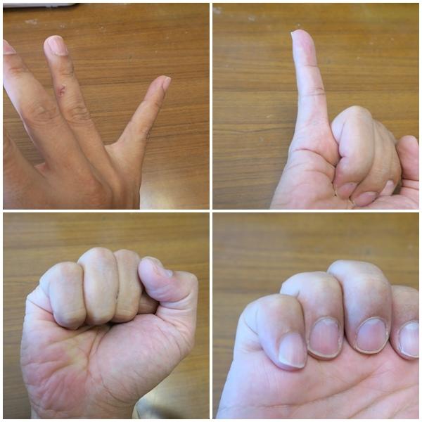 小指.jpg