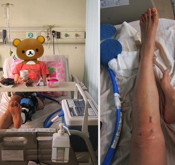 2013_0621_knee_surgery1 copy