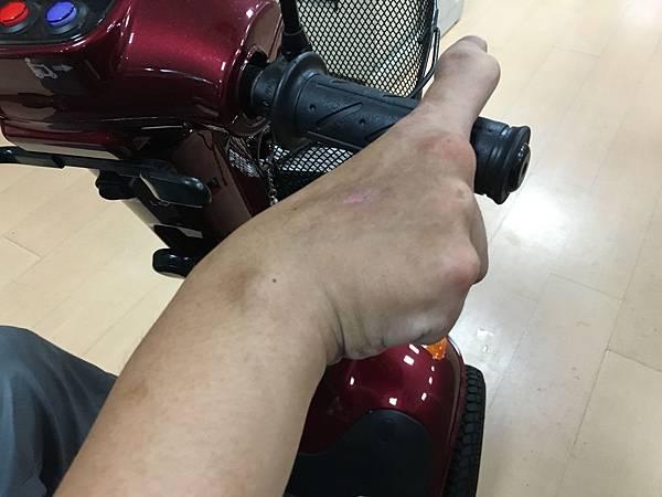職災後,信益的右手僵硬打不開,食指的關節也變形了。