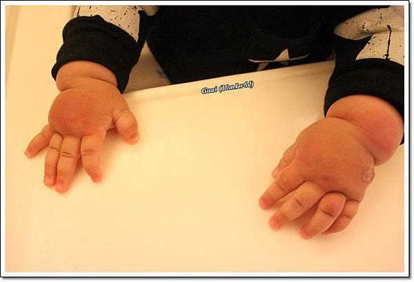 腫腫的雙手