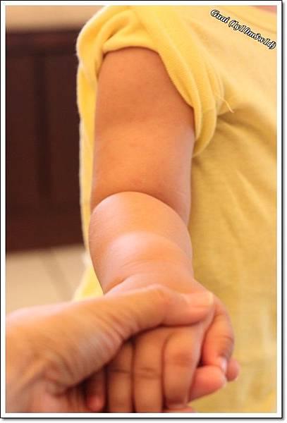 玫瑰疹手臂