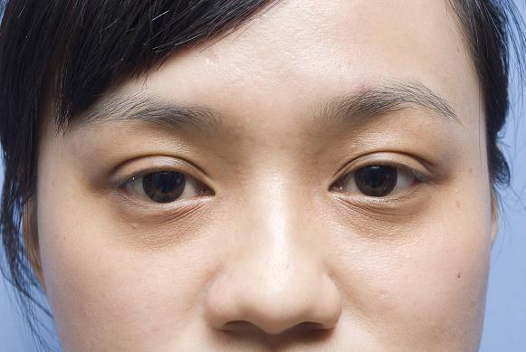 Winni的雙眼,看起來很空洞。.jpg