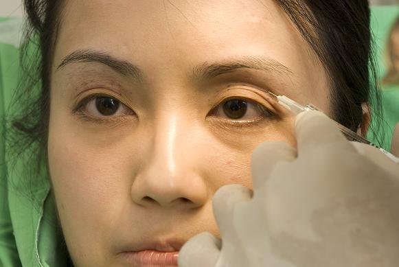 剛補完眼窩的右眼,比未施打的左眼年輕很多。.jpg
