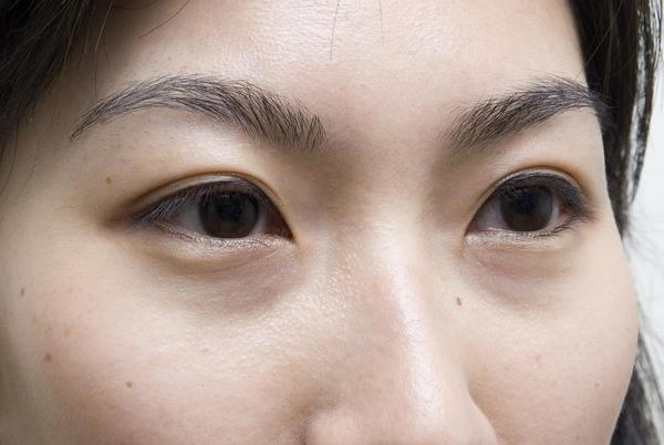 NG:明顯的淚溝,讓漂亮的眼睛失色!.JPG