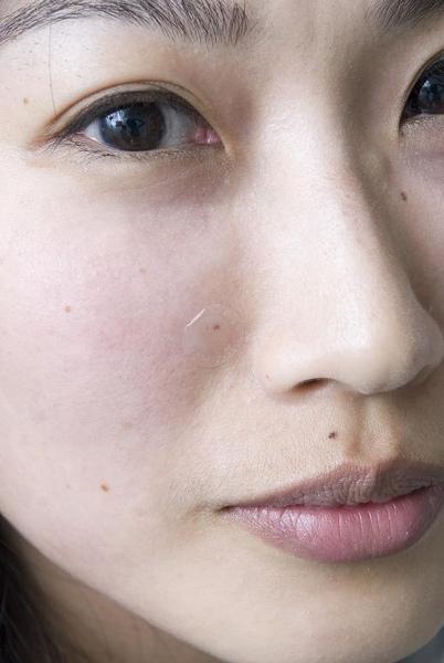 剛打完蘋果肌,Barbie右臉鼻側的小針孔,左臉也有一個。.JPG