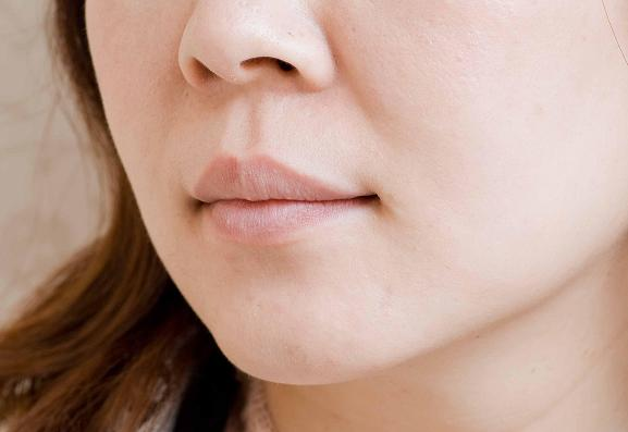 下唇太單薄,看起來乾巴巴.jpg