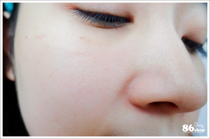 祛痘精華 痘痘肌救星 控油抗痘 除痘 臉部保養 INNER SKIN 生理痘 面皰 青春痘 痘疤 豆花妹 杏仁酸 藥用
