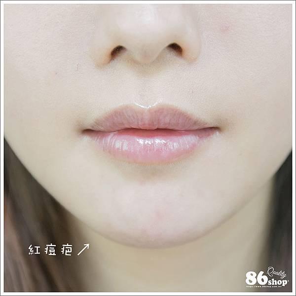 痘痘_痘疤_抗痘_痘痘貼_8不得 (3).jpg