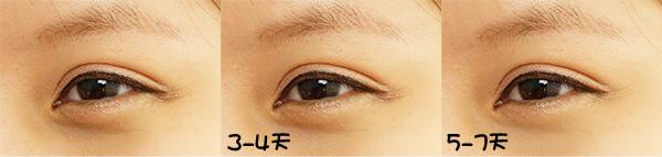 9截左眼+做7天眼睛變化.jpg