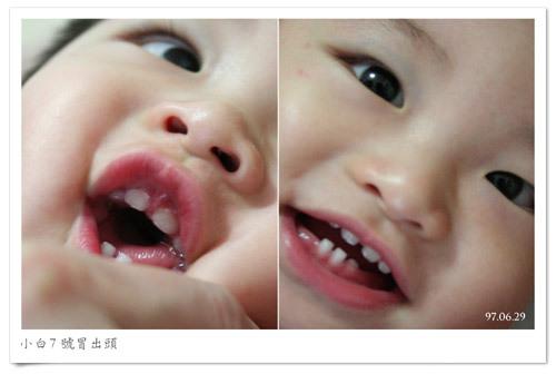 970629_teethpic.jpg
