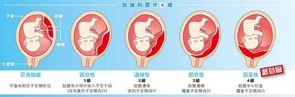 前置胎盤.jpg