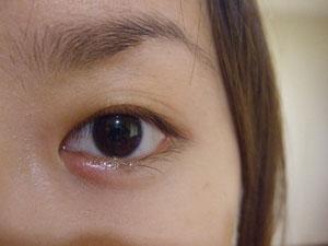 結膜炎+針眼