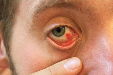 4/5出遊日,但昨天他一個人在家裡上吐下潟,搞到眼睛血管暴了