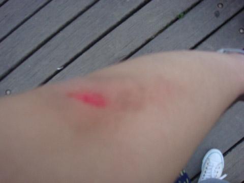 查驗傷口:手肘破皮、腳疑似烏青,幸好沒有大礙~真是幸運的小孩