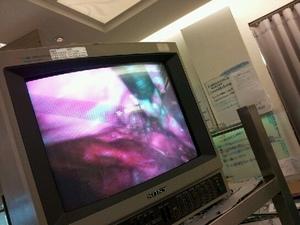 愛麗生婦產科腹腔鏡手術