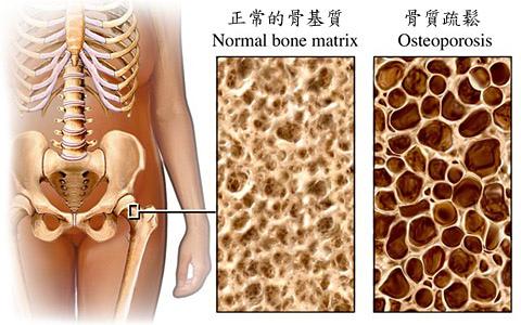 保留骨本 有撇步 規律運動 補充鈣