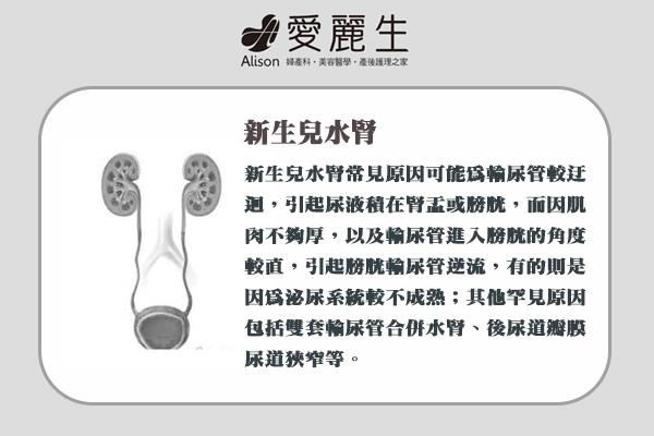 五大新生兒超音波檢查|把握新生兒超音波檢查黃金期3
